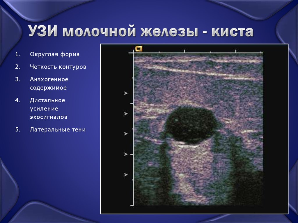 Узловая мастопатия молочной железы на узи