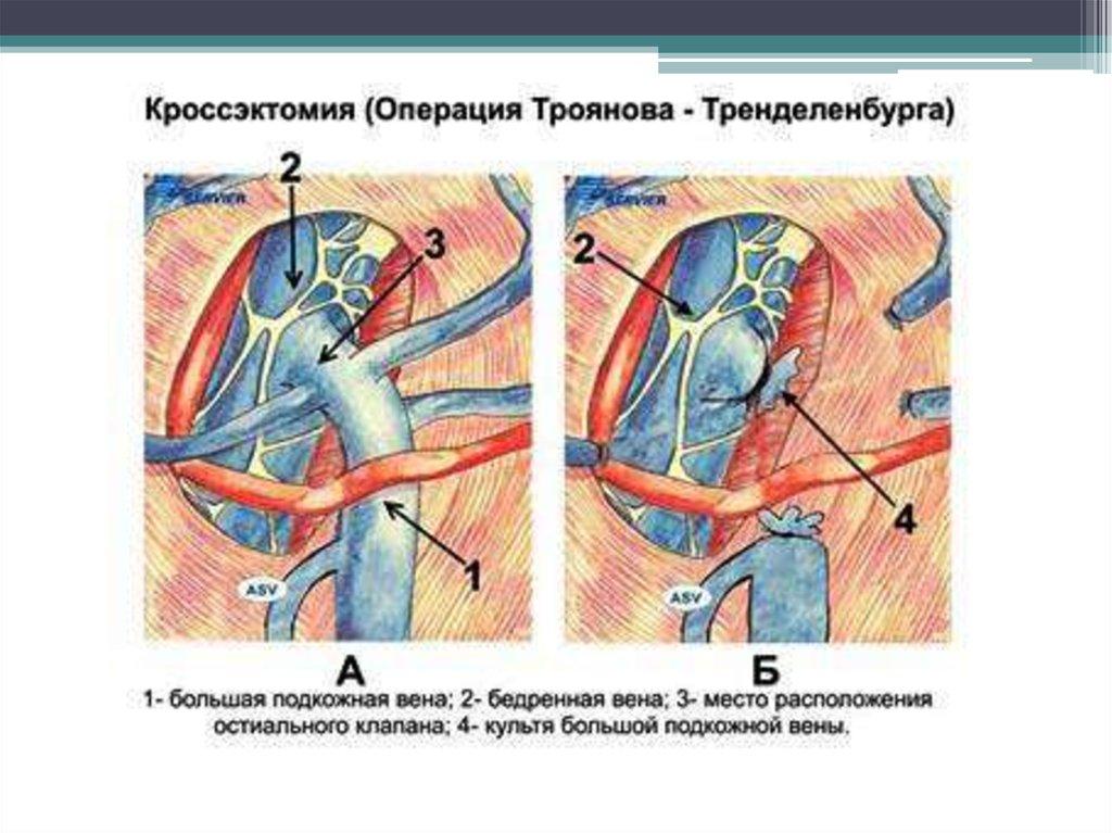 Болит горло увеличены лимфоузлы высокая температура
