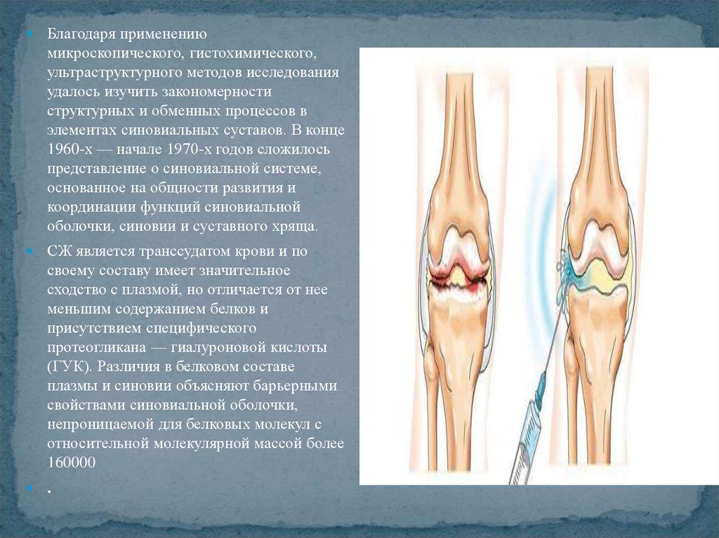 Лабораторная диагностика поражения суставов бандаж на коленный сустав orto