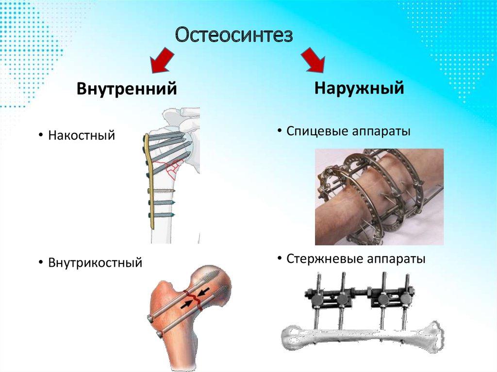 compression osteosynthesis principles Fachwörterbuch medizin englisch-deutsch compression osteosynthesis edcp — eccentric dynamic compression plate [osteosynthesis] medical dictionary.