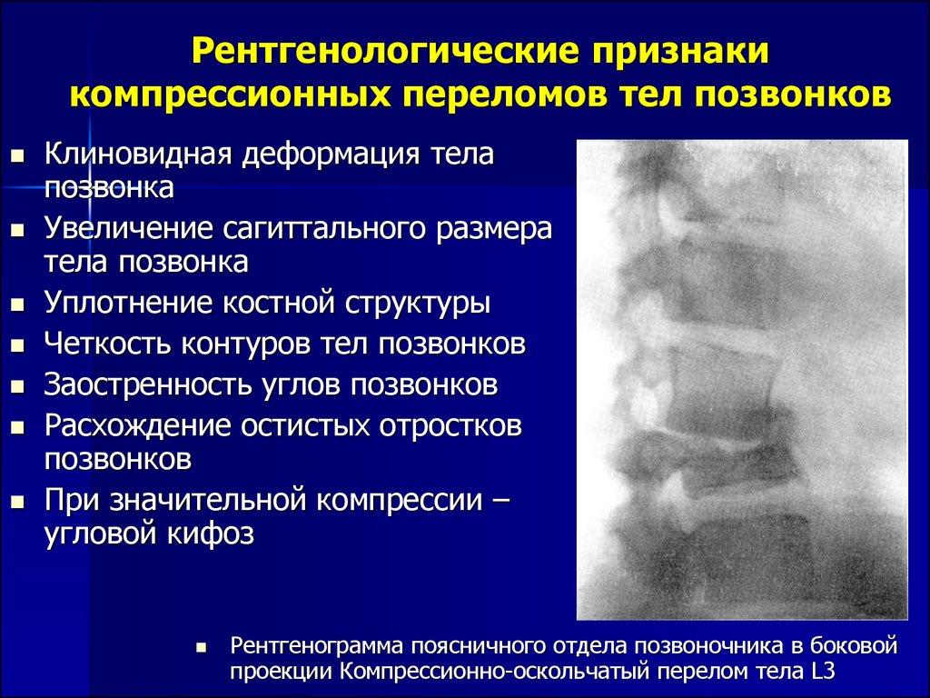 История болезни по компрессионному перелому позвоночника