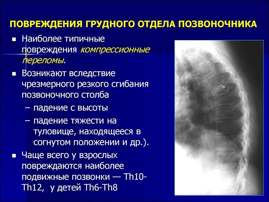 Последствия травм грудного отдела позвоночника