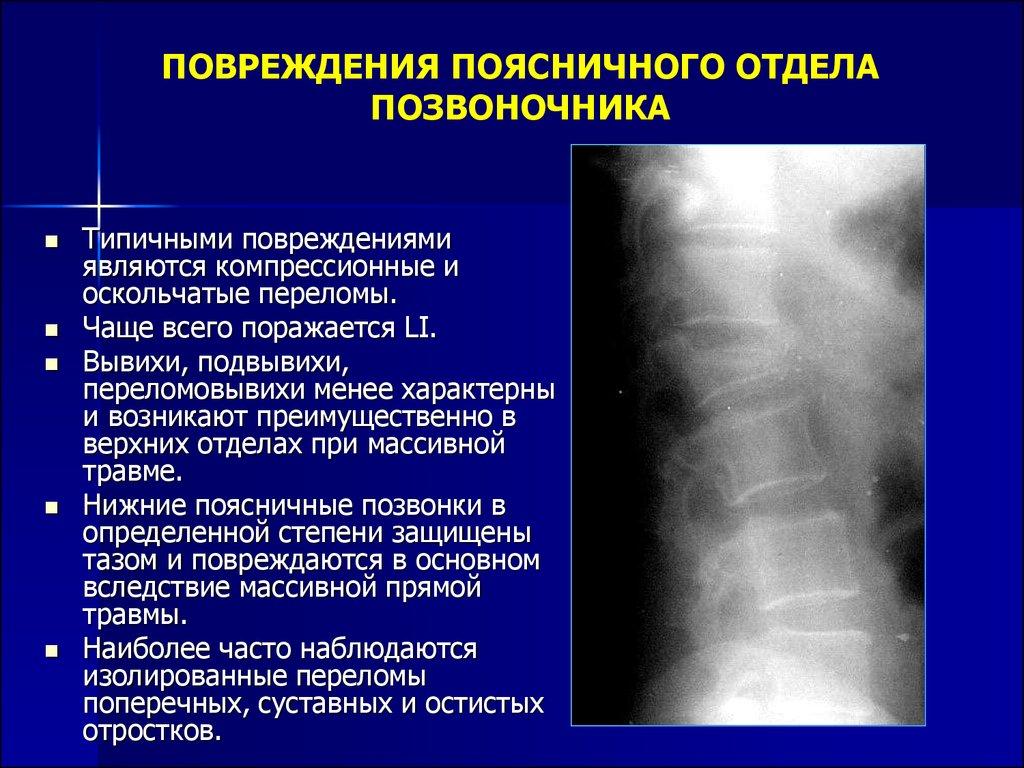 Травма поясничного отдела позвоночника противопоказания