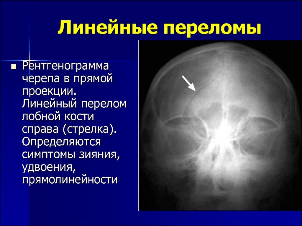 Линейный перелом костей черепа
