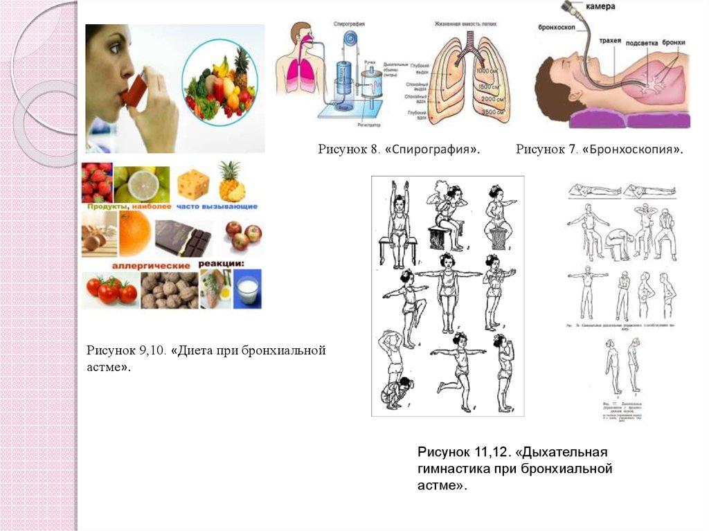 Деятельность участковой медицинской сестры в обучении пациентов с  Рисунок 8 Спирография Рисунок 7 Бронхоскопия Рисунок 9 10 Диета при бронхиальной астме Рисунок 11 12 Дыхательная гимнастика при бронхиальной