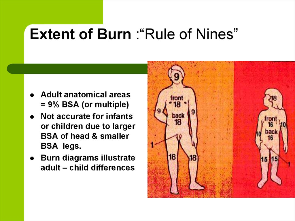 Initial Care Of Burns Online Presentation