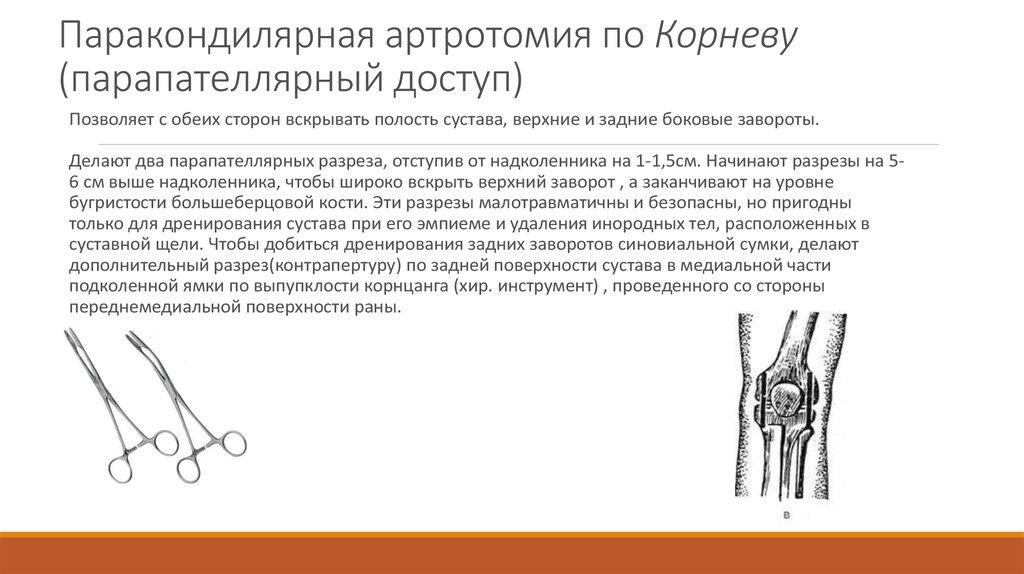 Пункции и артротомия голеностопного сустава электромагниты для суставов
