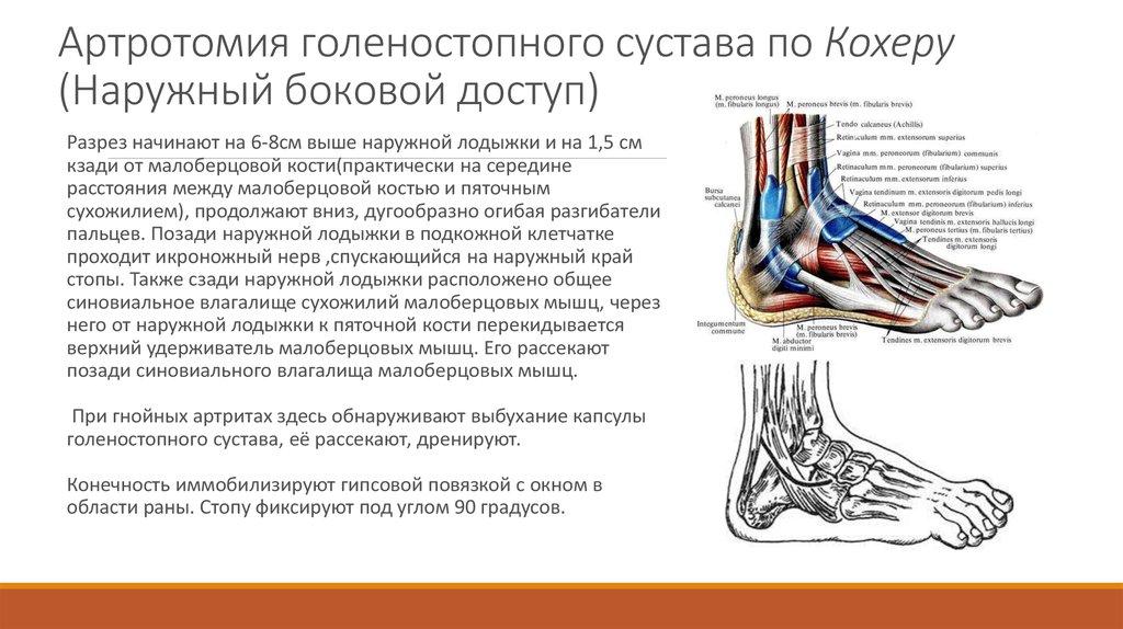 артроз суставов грязь мертвого моря лечение