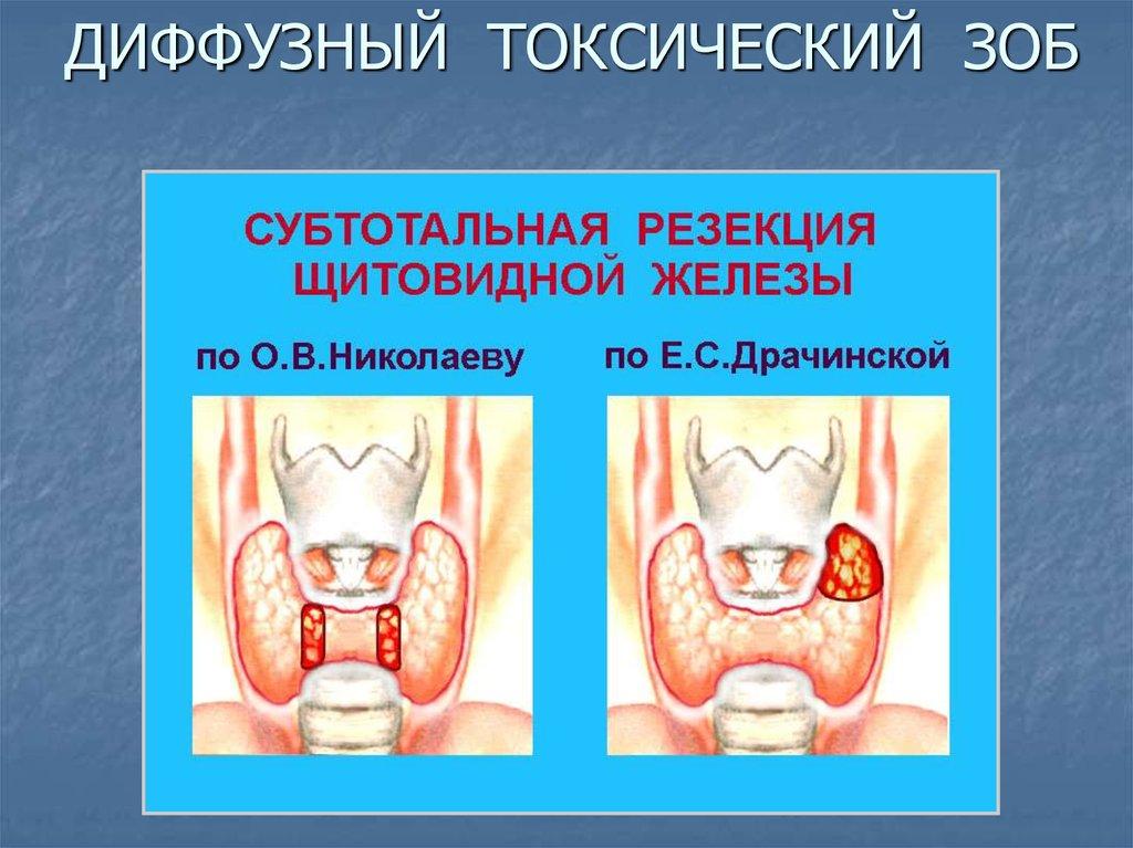 Диффузные заболевания щитовидной железы
