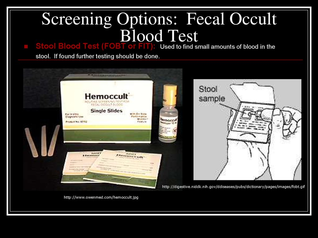 Screening Options: Fecal Occult Blood Test