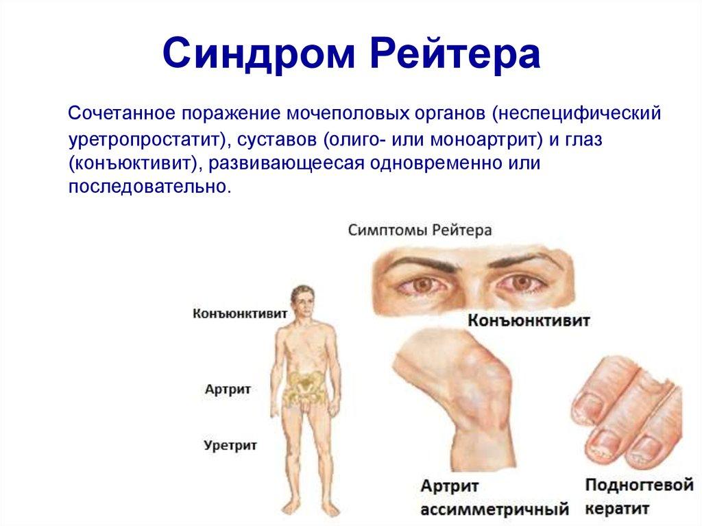 Артрит конъюнктивит уретрит