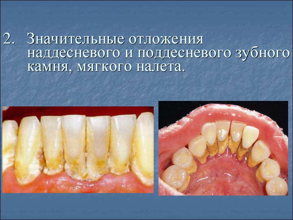 Поддесневой зубной камень фото