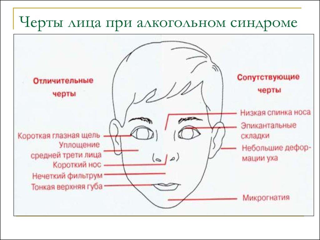 википедии характеристика черт лица картинки только развлечение, небольшой