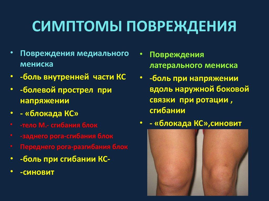 симптомы травм коленного сустава