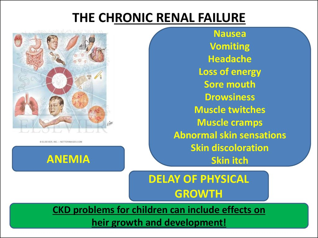 thesis on chronic renal failure Chronic kidney disease, also called chronic kidney failure, describes the gradual loss of kidney function your kidneys filter wastes and excess fluids from your blood, which are then excreted in your urine when chronic kidney disease reaches an advanced stage, dangerous levels of fluid.