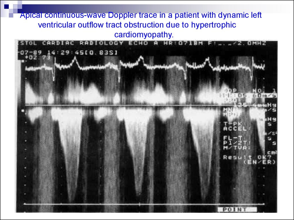 Apical continuous-wave Doppler trace in a patient with dynamic left ventricular outflow tract obstruction due to hypertrophic cardiomyopathy.
