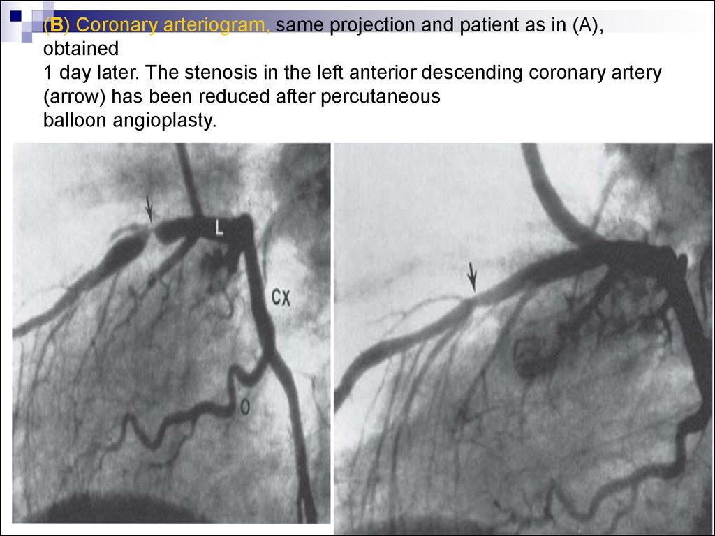 (B) Coronary arteriogram, same projection and patient as in (A), obtained 1 day later. The stenosis in the left anterior descending coronary artery (arrow) has been reduced after percutaneous balloon angioplasty.