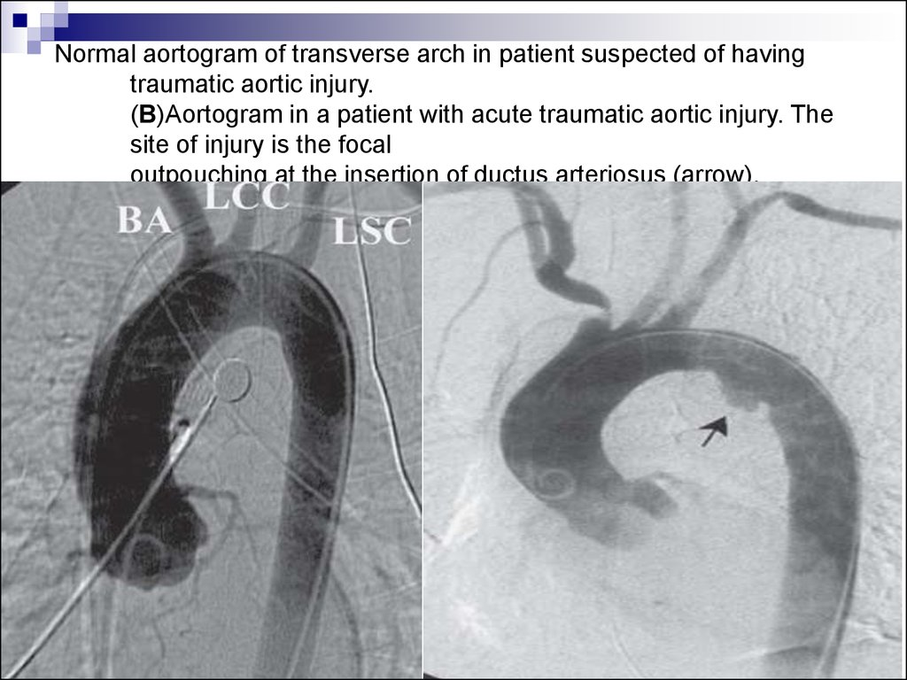 Normal aortogram of transverse arch in patient suspected of having traumatic aortic injury. (B)Aortogram in a patient with acute traumatic aortic injury. The site of injury is the focal outpouching at the insertion of ductus arteriosus (arrow).
