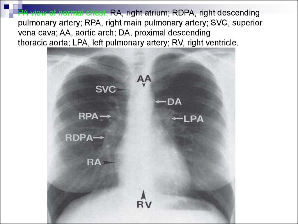 PA view of normal chest. RA, right atrium; RDPA, right descending pulmonary artery; RPA, right main pulmonary artery; SVC, superior vena cava; AA, aortic arch; DA, proximal descending thoracic aorta; LPA, left pulmonary artery; RV, right ventricle.
