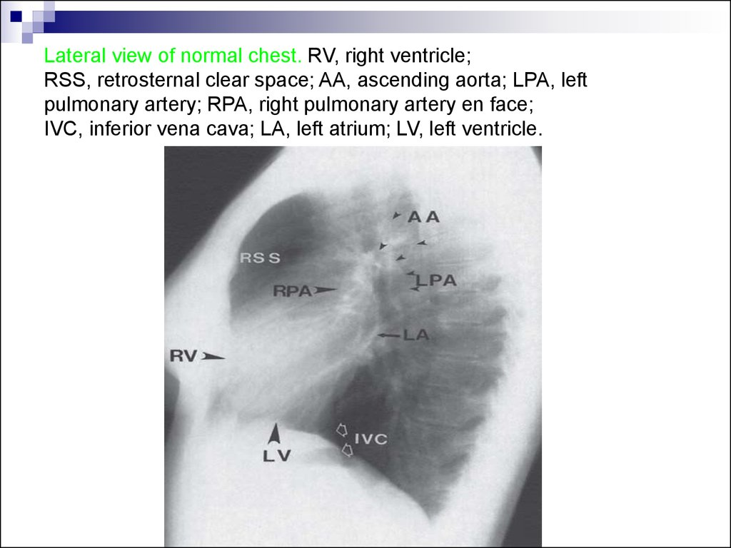 Lateral view of normal chest. RV, right ventricle; RSS, retrosternal clear space; AA, ascending aorta; LPA, left pulmonary artery; RPA, right pulmonary artery en face; IVC, inferior vena cava; LA, left atrium; LV, left ventricle.