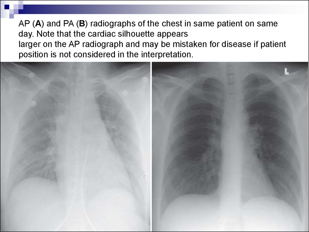 AP (A) and PA (B) radiographs of the chest in same patient on same day. Note that the cardiac silhouette appears larger on the AP radiograph and may be mistaken for disease if patient position is not considered in the interpretation.