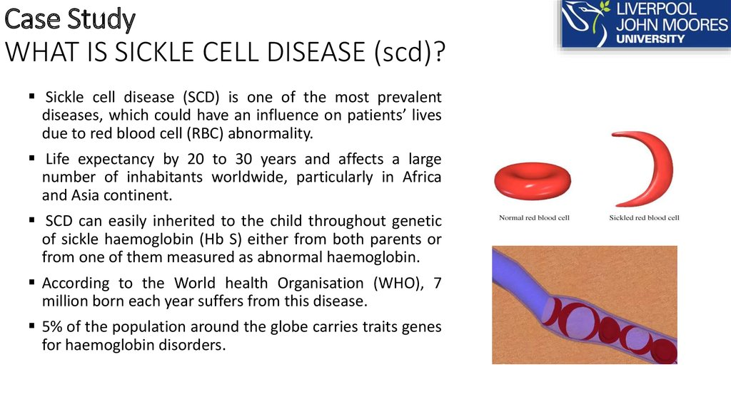Case Study WHAT IS SICKLE CELL DISEASE (scd)?