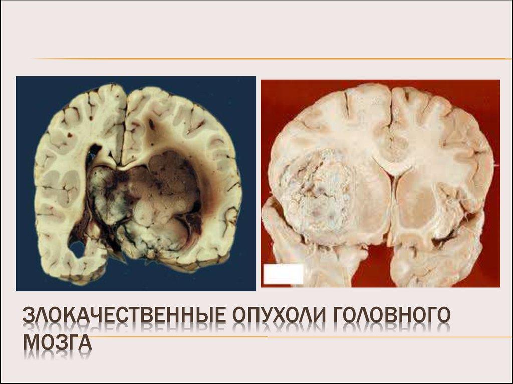 Основные симптомы опухоли головного мозга