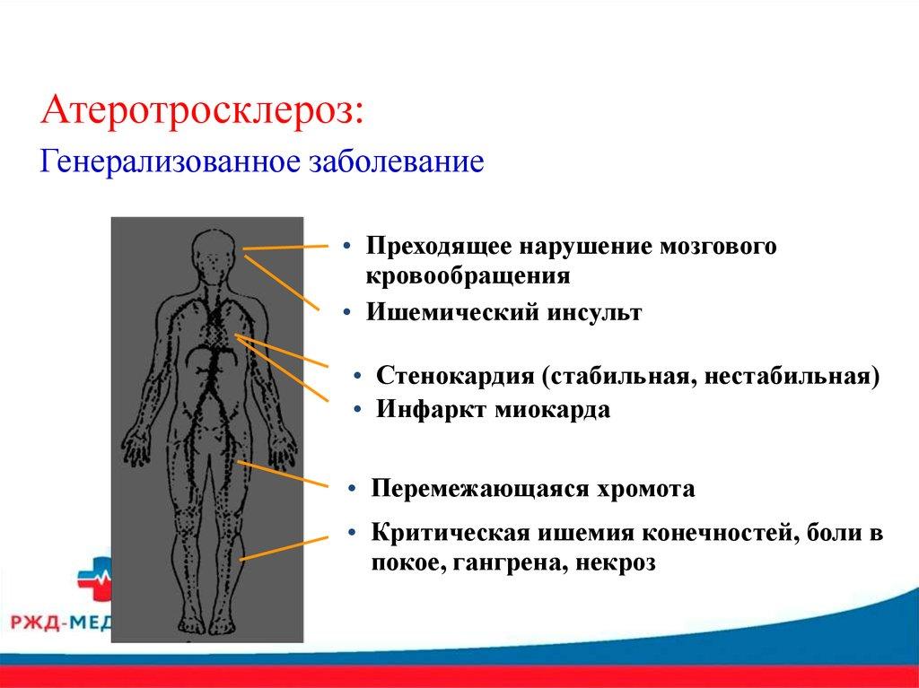 Школа здоровья для пациентов с артериальной гипертонией ...