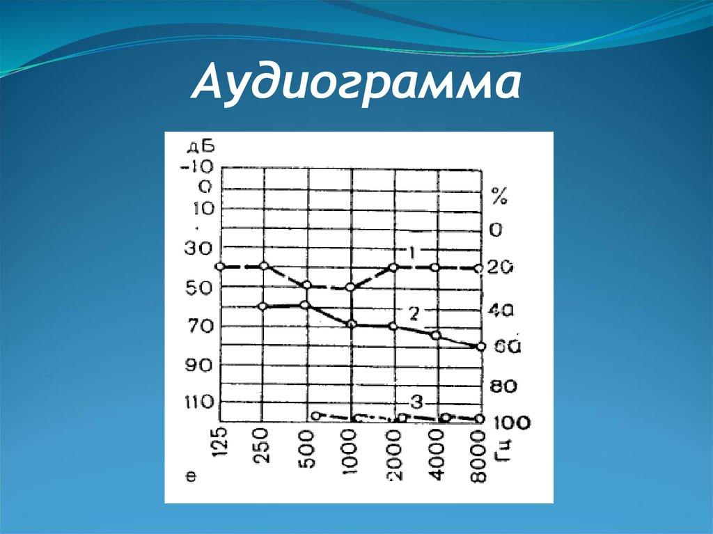 псиактивная аудиограмма mp3