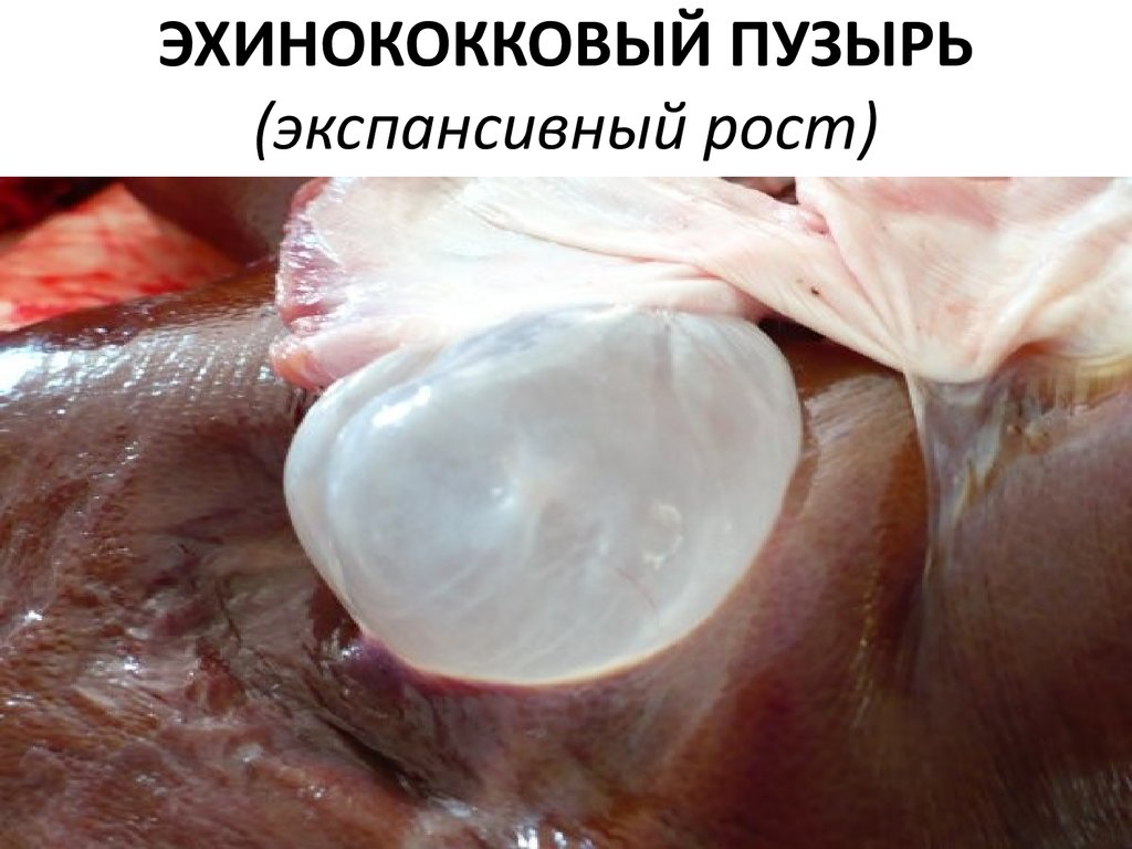 плоские черви паразиты человека строение