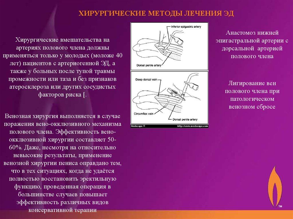 эректильная дисфункция диагностика презентация