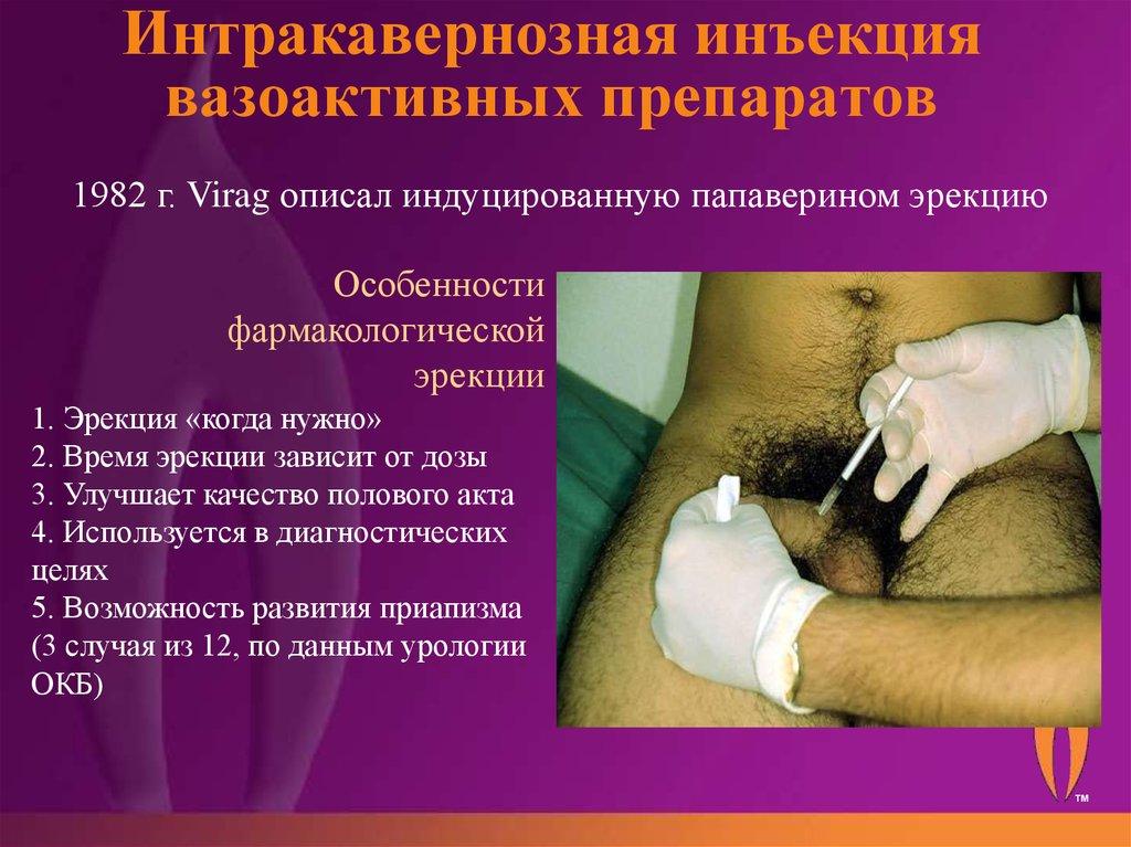 Эротон  препарат для лечения эректильной дисфункции