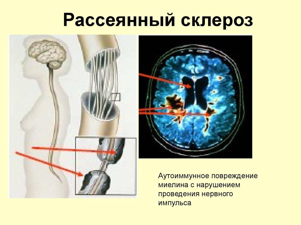 рубрике: лечение рассеянного склероза в россии рецепт овощного салата-ассорти