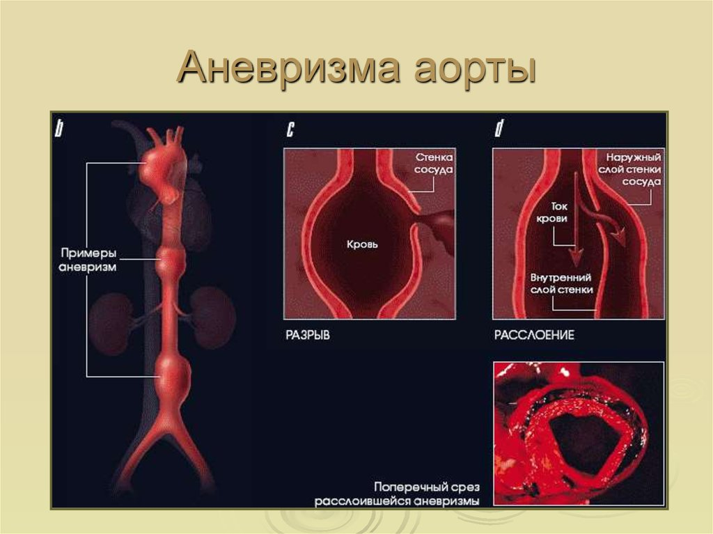 образом картинки аневризм аорты это одно самых
