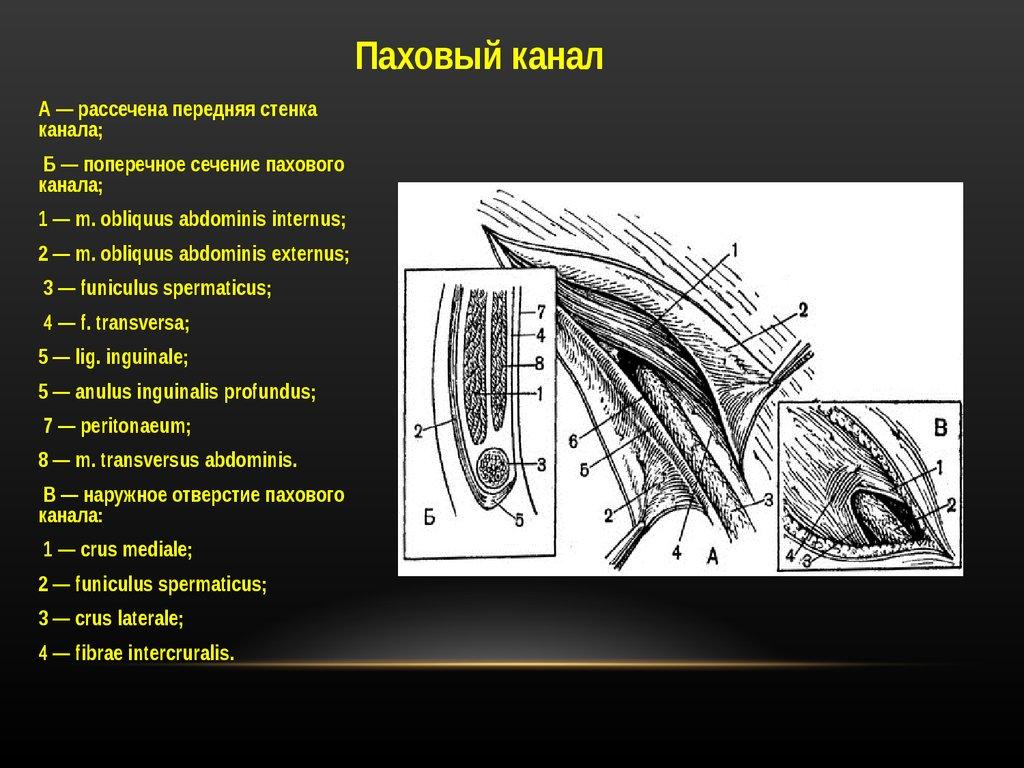 паховая грыжа презентация онлайн