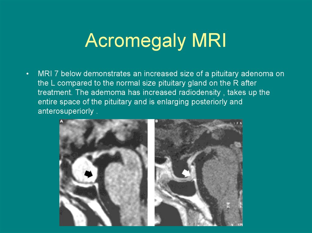 Acromegaly MRI