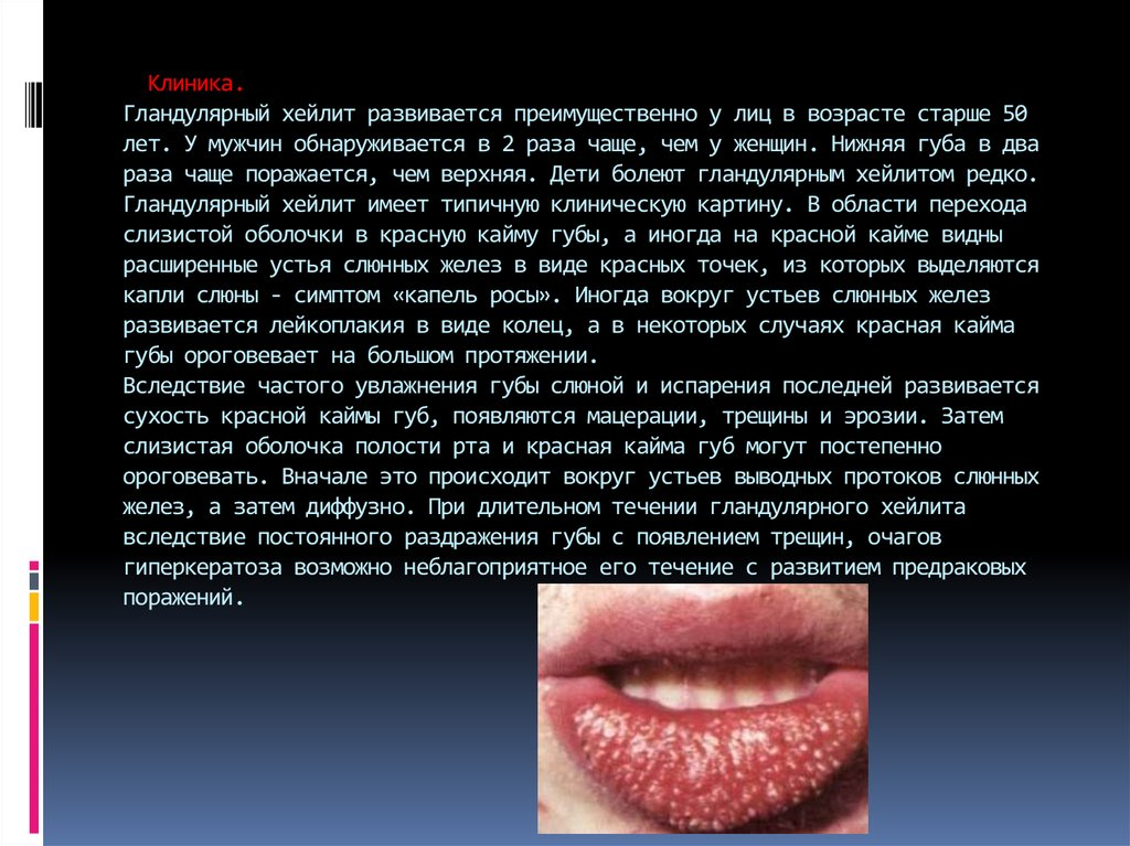 Гиперкератоз красной каймы губ