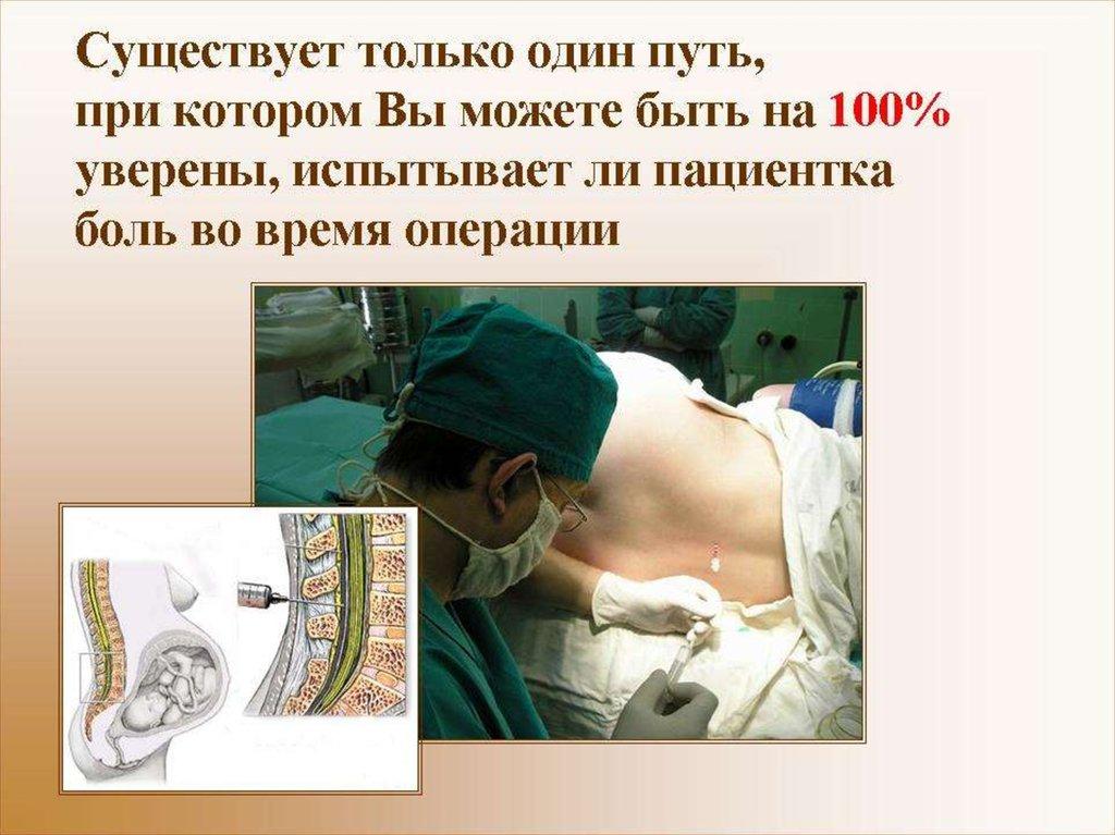 как выбрать анестезию при кесаревом сечении отзывы нашими предложениями
