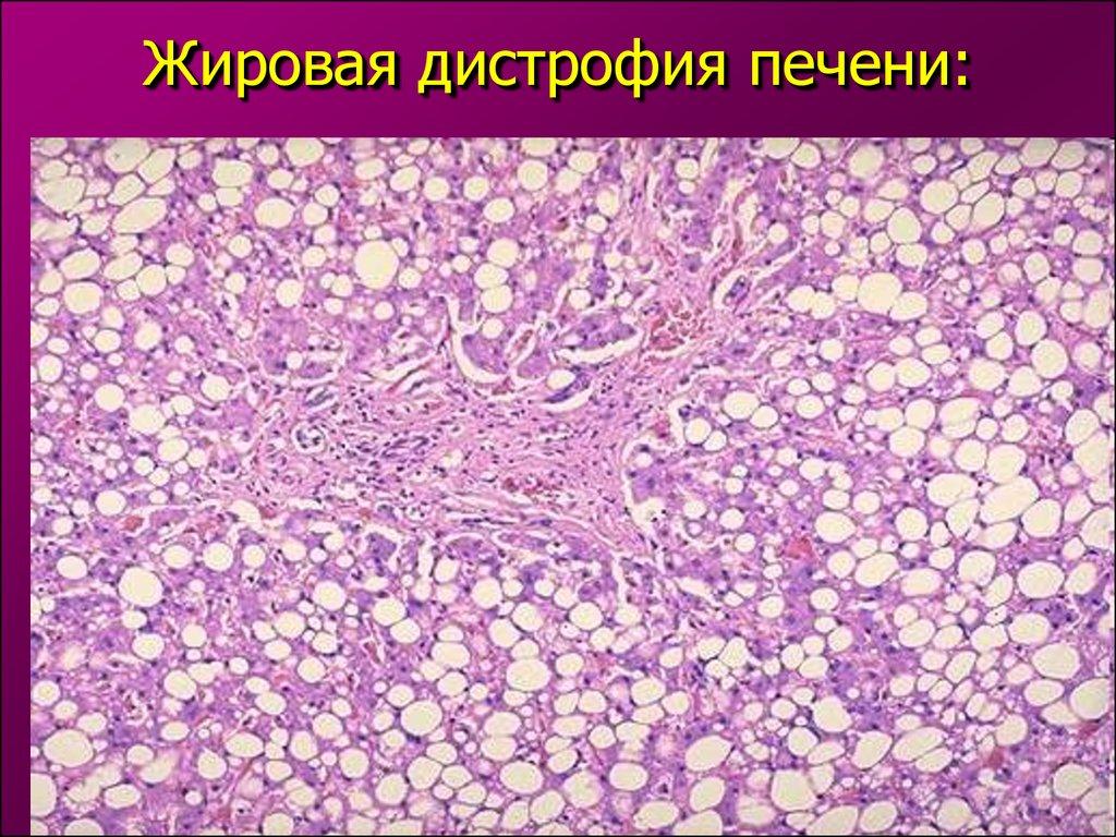 СКО, Зеленчукского как лечитт крупнокапельную жировую дистрофию печени таком участке можно