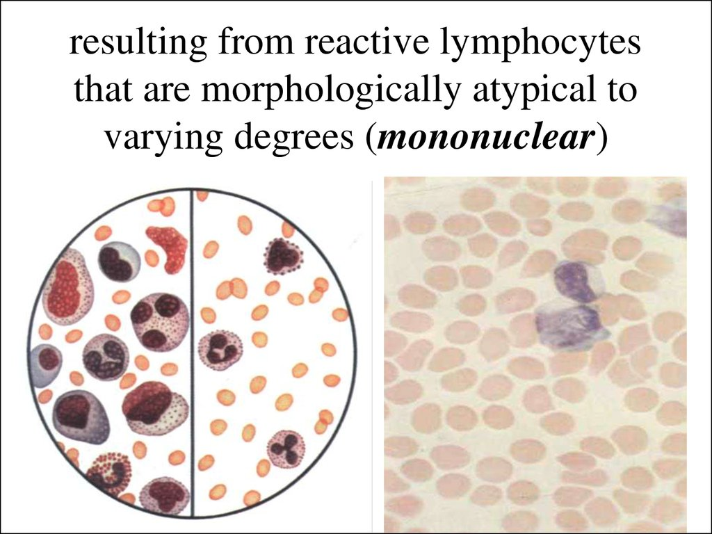 resulting from reactive lymphocytes that are morphologically atypical to varying degrees (mononuclear)