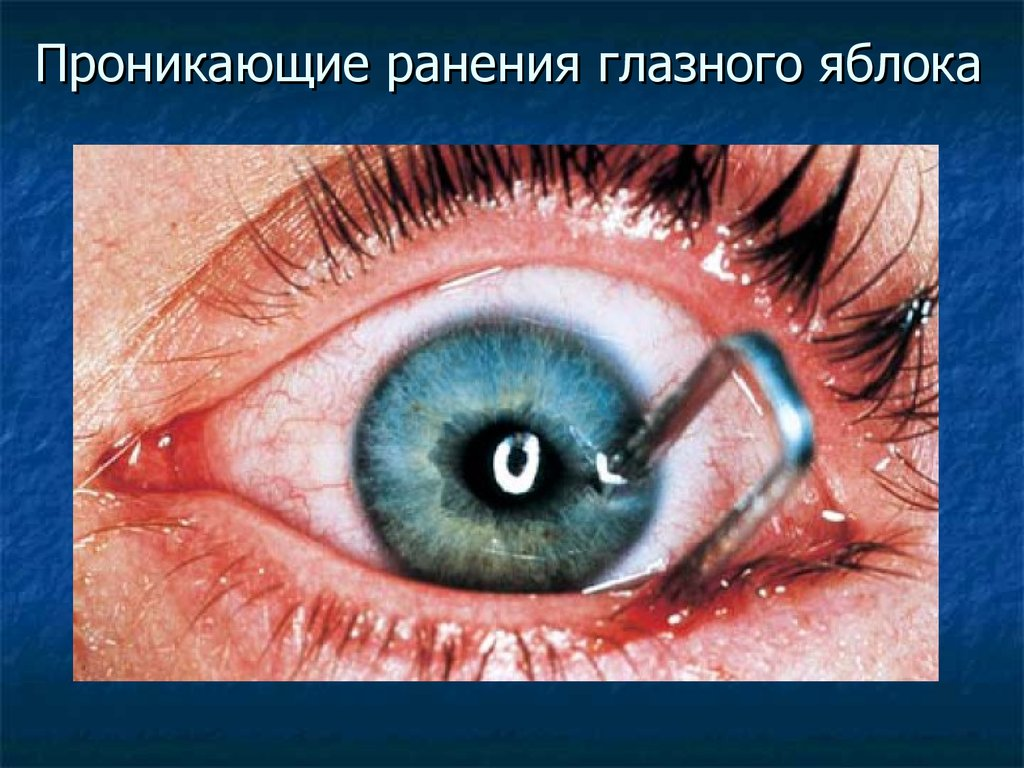 ruptured globe eye injuries - 520×320