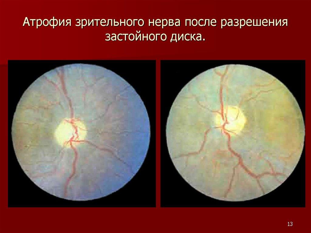 Атрофия зрительного нерва в картинках