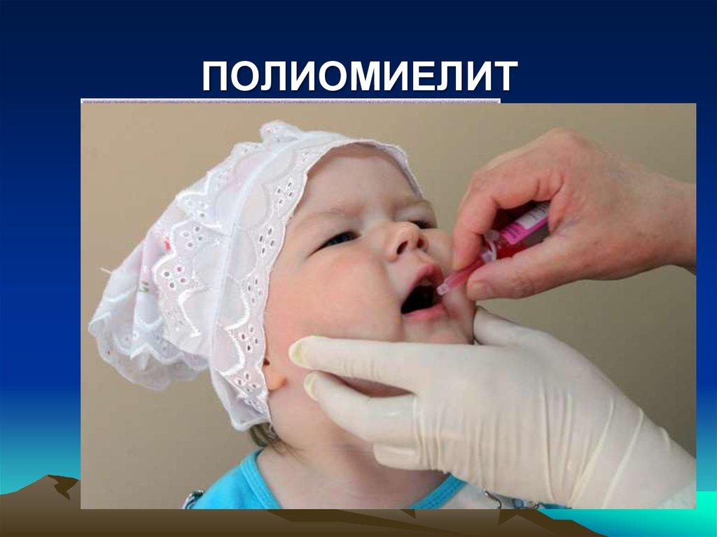 Первая прививка акдс и полиомиелит