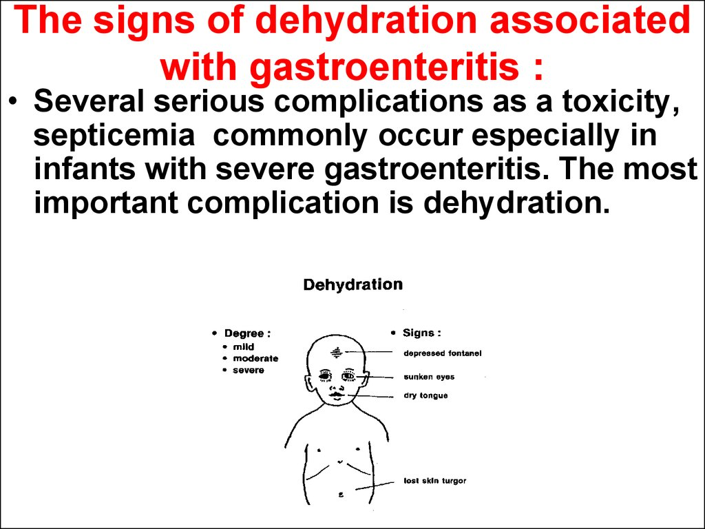 The signs of dehydration associated with gastroenteritis :