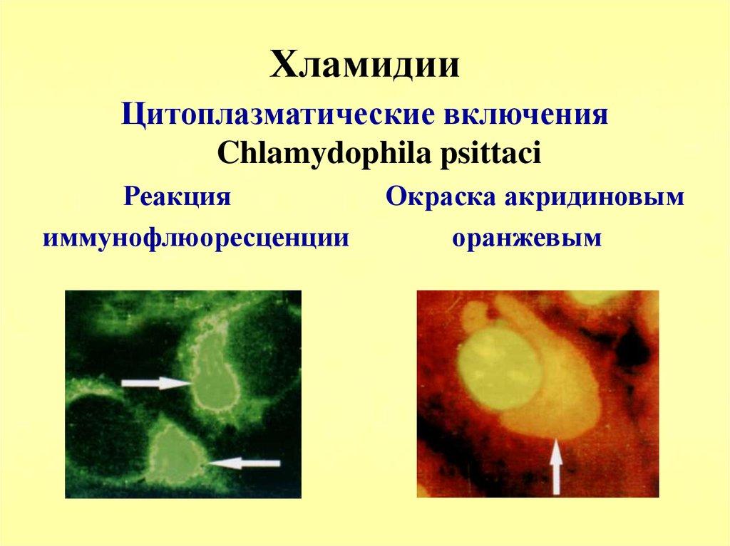 Простатит вызван хламидиями можно ли есть репчатый лук при простатите