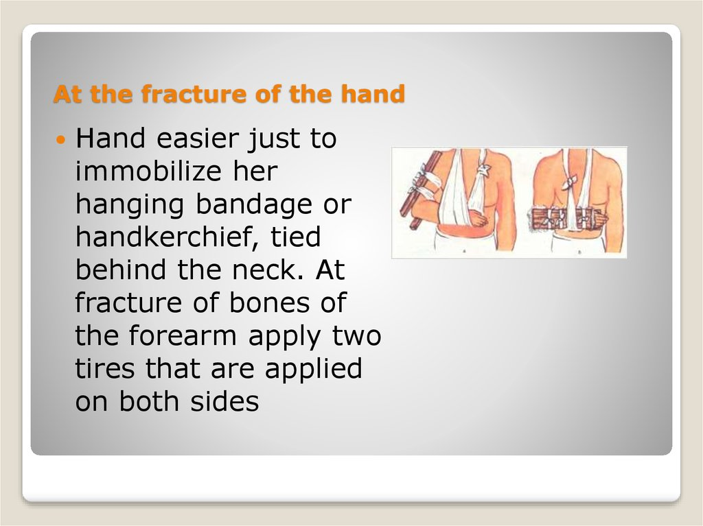 At the fracture of the hand