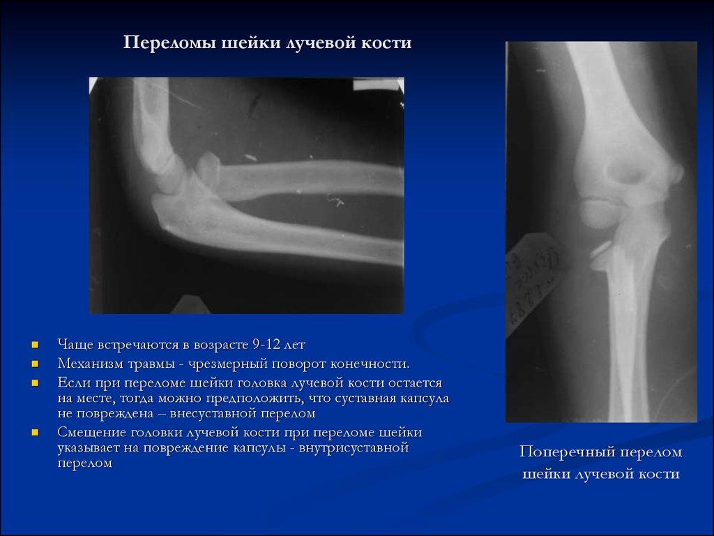 Перелом головки плечевой кости без смещения