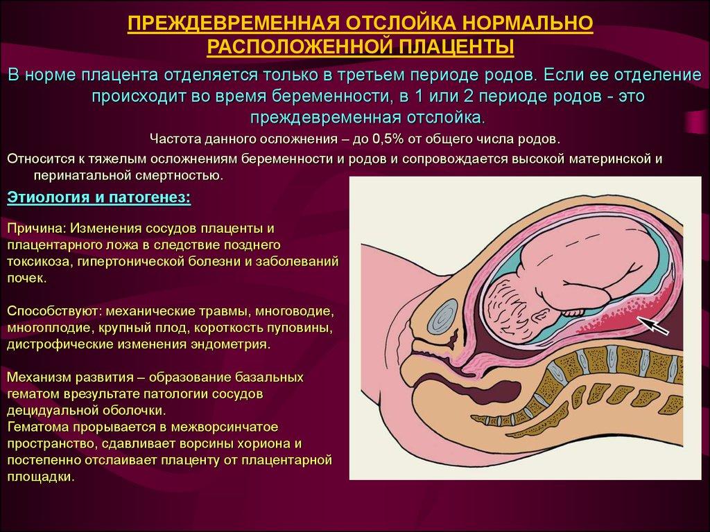 Плацента по передней стенке матки — особенности ведения беременности