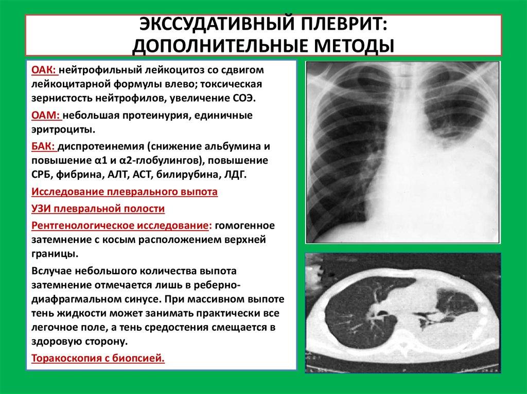 является рентгенологическим плеврита что признаком осумкованного