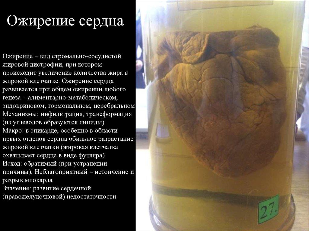 Инфильтрация жировой клетчатки